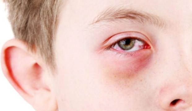 Gözlerinizi bahar alerjisinden korumanın 5 yolu
