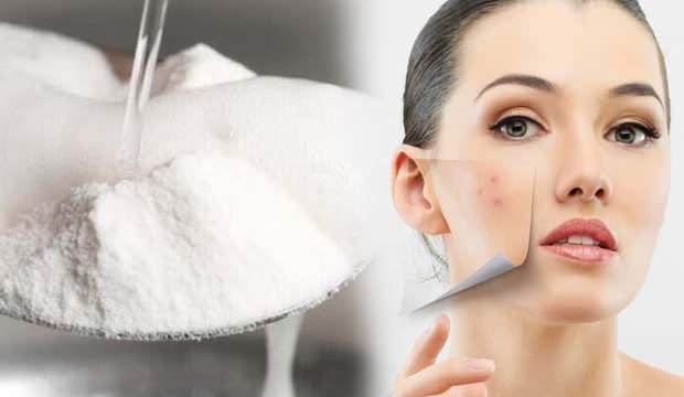 Yoğurt ve karbonat maskesi nasıl yapılır? Sivilceleri kurutan karbonat maskesi…